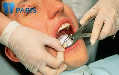 """"""" Hoang mang"""" Răng hàm lung lay có nên nhổ không ?"""