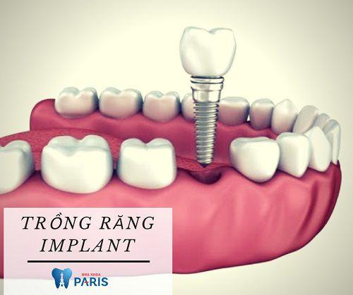 Có nên trồng răng giả ngay khi nhổ răng hay không?
