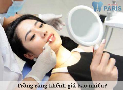 Trồng răng khểnh giá bao nhiêu tiền? Bảng giá Chuẩn & Rẻ 1