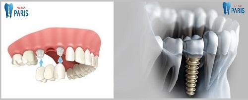 Giá trồng răng số 6 ( răng cấm) hết bao nhiêu ? - Bảng giá ưu đãi 1