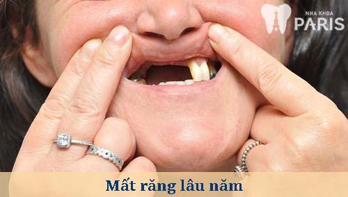 Cảnh báo những hậu quả nghiêm trọng khi mất răng lâu năm 1
