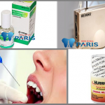 Trồng răng implant có đau không & khi nào nên thực hiện ?