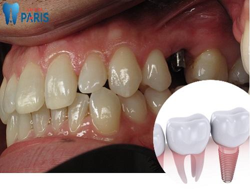 Băn khoăn: Răng hàm số 6 bị sâu có nên nhổ bỏ không? 3