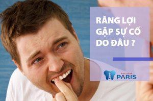 Cách làm chắc răng lợi hiệu quả siêu tốc, siêu tiết kiệm 1