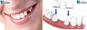 Cách làm chắc răng lợi hiệu quả siêu tốc, siêu tiết kiệm 2