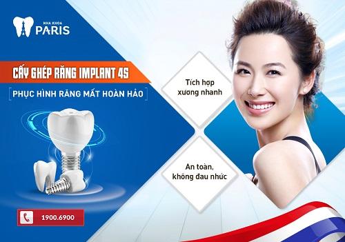 Trồng răng Implant có đau không với công nghệ Implant 4S
