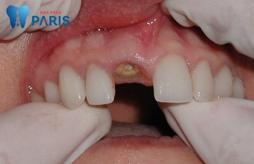 Thời điểm thích hợp để trồng răng implant là ngay sau khi mất răng