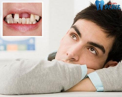 Giải mã: Gãy răng là điềm gì có nguy hiểm gì không ?