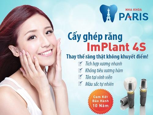Cấy ghép răng implant ở đâu tốt & Có cam kết bảo hành ? 4