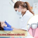 Địa chỉ trồng răng implant ở đâu tốt & Có cam kết bảo hành?