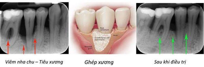 Tiêu xương răng và những biến chứng nguy hiểm rùng mình 3