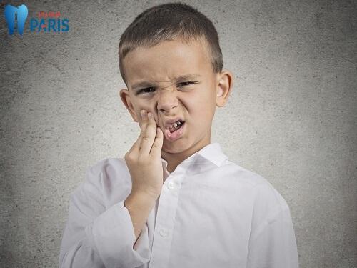 Từ A-Z thông tin về xiết ăn răng ở trẻ em phụ huynh cần biết 2