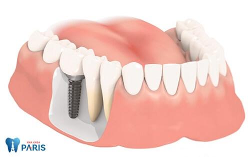 Bị gãy răng cấm ảnh hưởng lớn thế nào và cách khắc phục 2