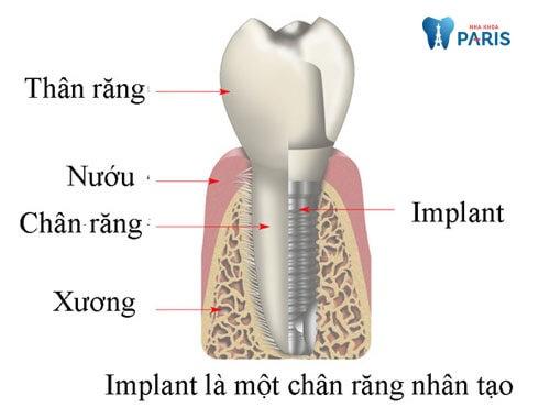 Trồng răng Implant ở đâu tốt là băn khoăn của nhiều người mất răng
