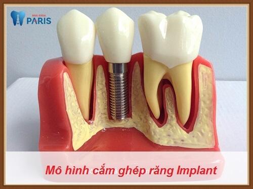 Răng Implant ở đâu tốt, có cấu trúc đầy đủ như răng thật