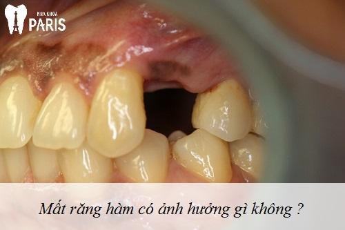Thắc mắc : Mất răng hàm không trồng lại có được không ?