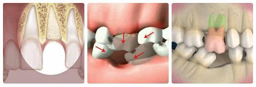 Bị mất răng hàm không trồng răng có sao không?