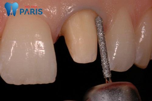 Mài răng giá bao nhiêu tiền tại Nha khoa Paris?