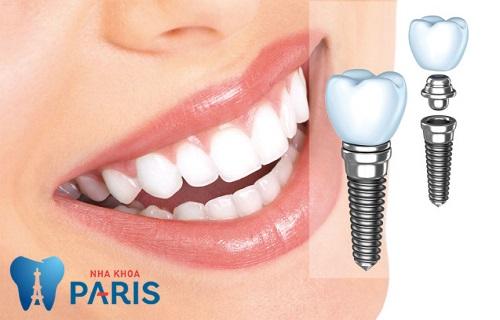 Trồng răng cấm giả An Toàn - Đảm bảo ăn nhai, độ bền Vĩnh Viễn 3