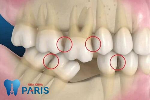 Trồng răng cấm giả An Toàn - Đảm bảo ăn nhai, độ bền Vĩnh Viễn 2