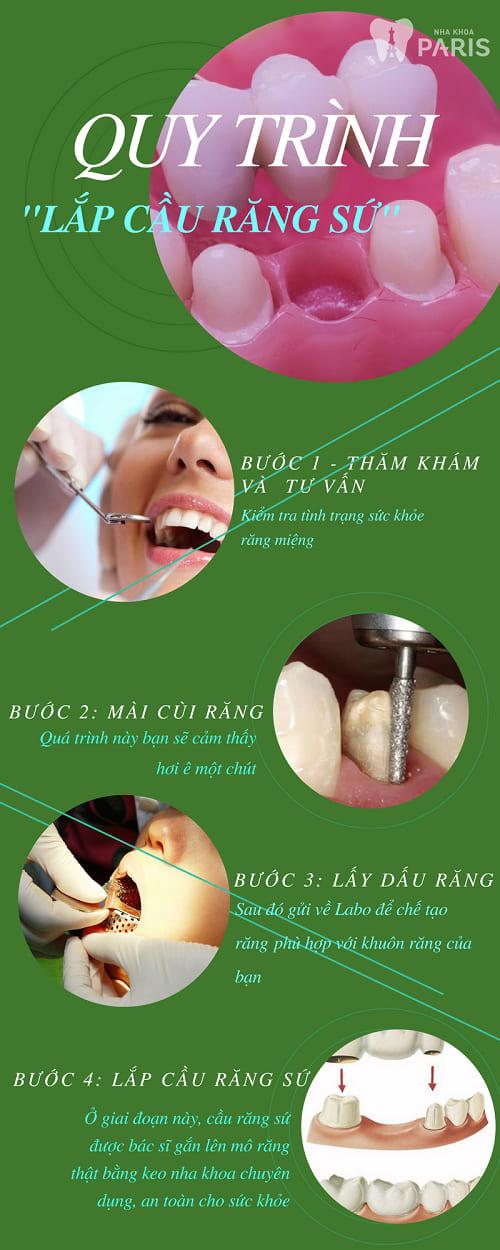 Quy trình trồng răng sứ an toàn và bền đẹp