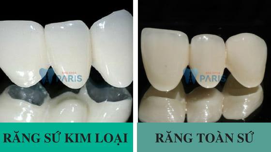 Phân vân: Nên trồng răng giả loại nào thì tốt ?