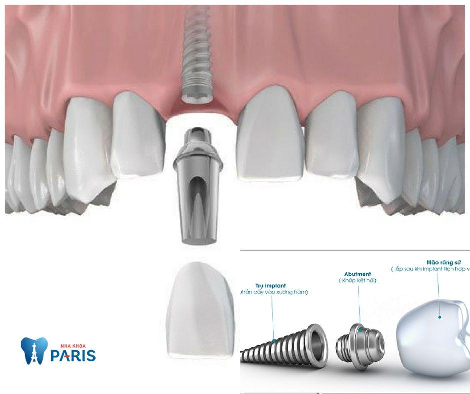 Trồng răng cửa giả bằng Implant, khôi phục răng mất toàn diện