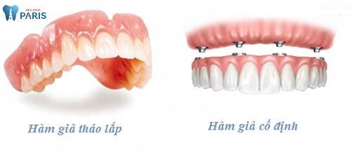 Băn khoăn: Trồng răng sứ nguyên hàm có đắt không ?