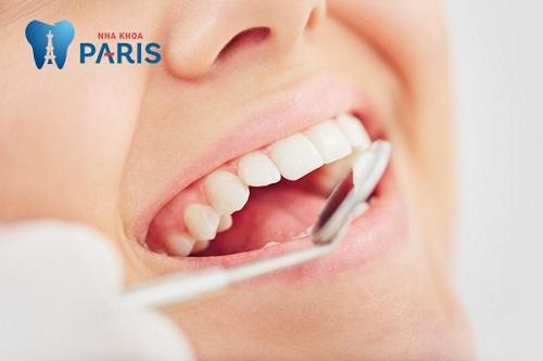 Bọc răng sứ sau khi mài răng giúp duy trì thẩm mỹ và bảo vệ răng