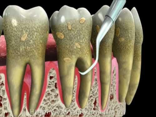 Lấy cao răng giúp khắc phục tình trạng răng bị lung lay hiệu quả