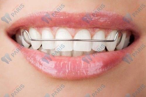 Khắc phục răng bị lung lay bằng cách đeo nẹp răng