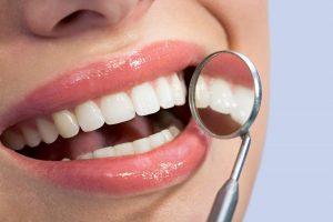 Trồng răng sứ Titan và 5 điều bạn nhất định phải biết! 5