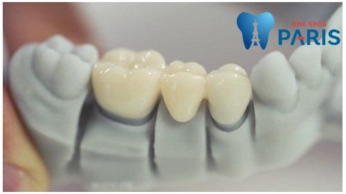 Làm cầu răng sứ sử dụng được bao lâu & phải thay lại không ?