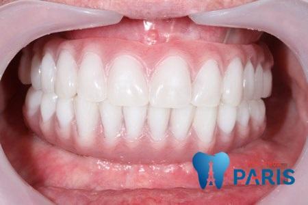 Giá làm răng giả nguyên hàm bao nhiêu tiền, có đắt không ?
