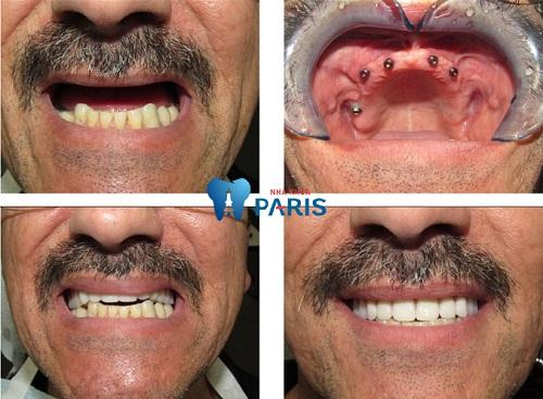 Trồng răng All - On hàm trên