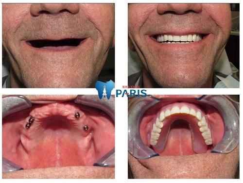 Làm răng giả nguyên hàm kết hợp 4 mini Implant
