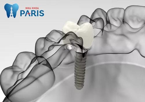 Làm răng implant có tốt không khi phục hình cả thân và chân răng ?