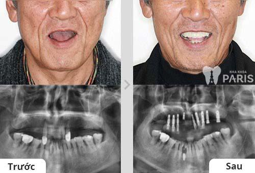 Răng implant có tốt không & quy trình thực hiện ra sao ?