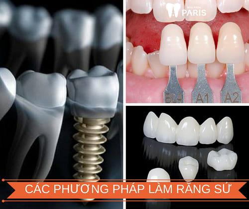 Các phương pháp làm răng sứ hiện nay