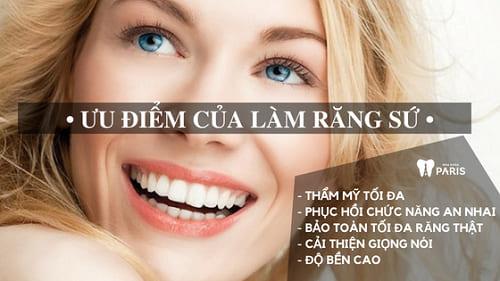 5 ưu điểm của làm răng sứ bạn không biết