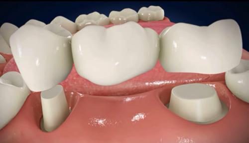 Làm cầu răng ở đâu tốt