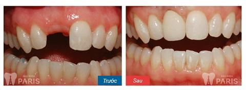 Khách hàng làm cầu răng sứ cho răng cửa
