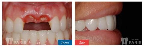 2 răng cửa được khôi phục với biện pháp làm cầu răng sứ