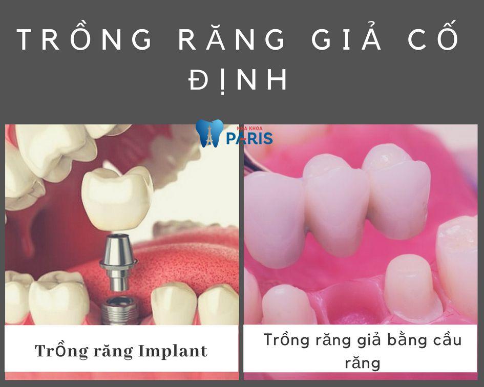 Trồng răng giả cố định là giải pháp phục hình răng tối ưu