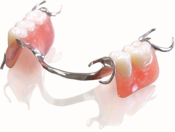Trồng răng giả tháo lắp với răng gắn trên khung