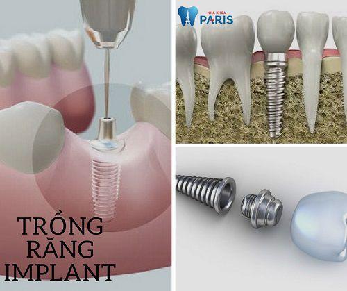 """Cấy Ghép Implant 4S - Công nghệ trồng răng """"Số 1"""" tại Việt Nam"""