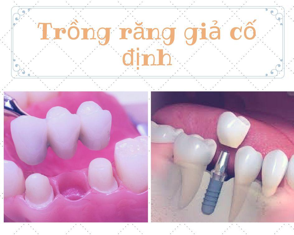 Khi nào cần dùng phương pháp trồng răng giả cố định