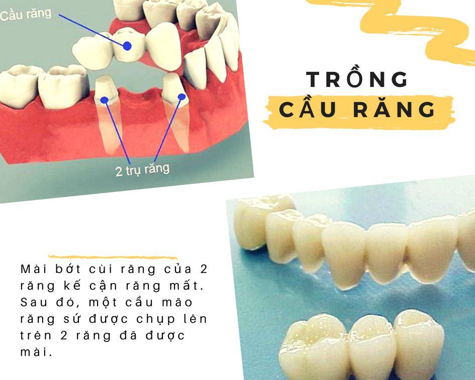 Phương pháp trồng răng giả cố định bằng cầu răng
