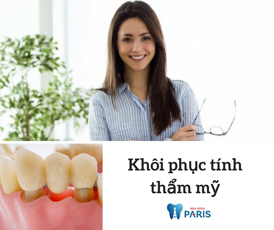 Làm cầu răng sứ giúp khôi phục tính thẩm mỹ cho hàm răng