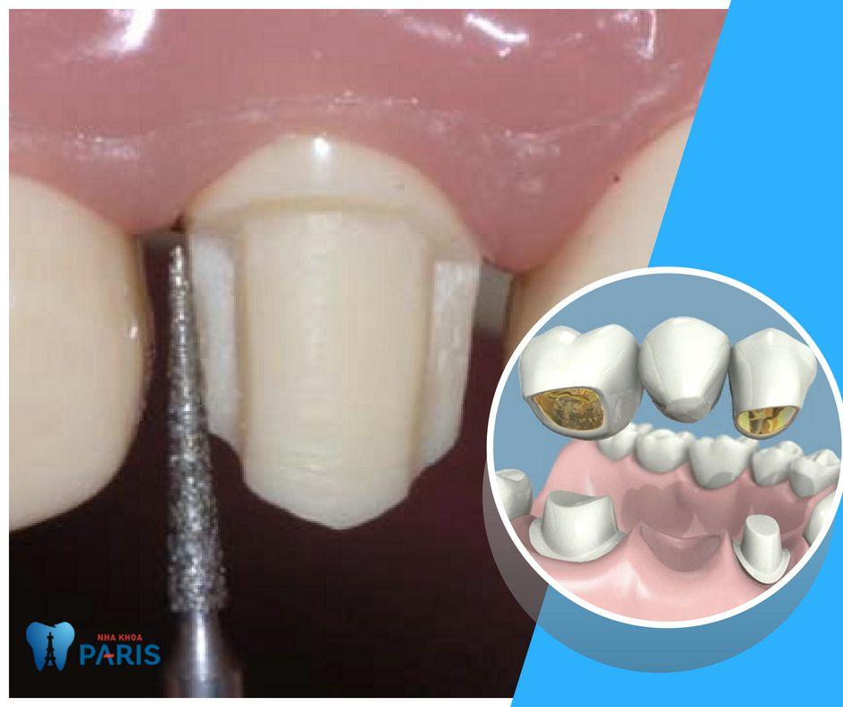 Trồng răng bằng cầu răng sứ yêu cầu 2 răng bên phải khỏe mạnh